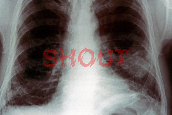 An x-ray of  carcinoma in lung, right lower lobe. This image may only be used to portray the subject in a positive manner..©shoutpictures.com..john@shoutpictures.com