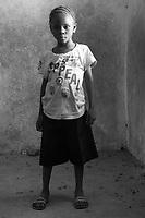 Orfani per colpa di Ebola nella foto Aminata Kamara ha sofferto di Ebola un mese e ha perso entrambi i genitori Villaggio di Kontabana 29/03/2016 foto Matteo Biatta<br /> <br /> Orphanes for guilt of Ebola in the picture Aminata Kamara had suffered of Ebola for one month and she lost mother and father due Ebola Kontabana Village 29/03/2016 photo by Matteo Biatta