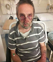"""Pictured: Nigel Davies, the victim to the attack.<br /> Re: The victim of a machete attack which led to an armed siege has been photographed showing his injuries.<br /> The man has been named locally as Nigel Davies, 57, who was assaulted with the weapon in the street two days ago.<br /> His attacker fled into a nearby derelict building where he spent 48 hours in a tense stand-off with armed police.<br /> But he was arrested early this morning(thurs) and is being questioned about a number of incidents.<br /> The graphic picture of Mr Davies was posted on social media after he was found covered in blood following the street attack in Tredegar, South Wales.<br /> He was treated in hospital for his facial wounds but is now at home with his family.<br /> An eye-witness at the scene of the siege said: """"The police are saying there is no danger to the public.<br /> """"But you can see from the picture that the victim was viciously assaulted with a weapon.""""<br /> Gwent Police confirmed that armed police were deployed after reports of a man armed with a machete was holed up inside the building on an industrial estate.<br /> Officers used riot shields to protect themselves when the man started throwing chunks of masonry at the them."""