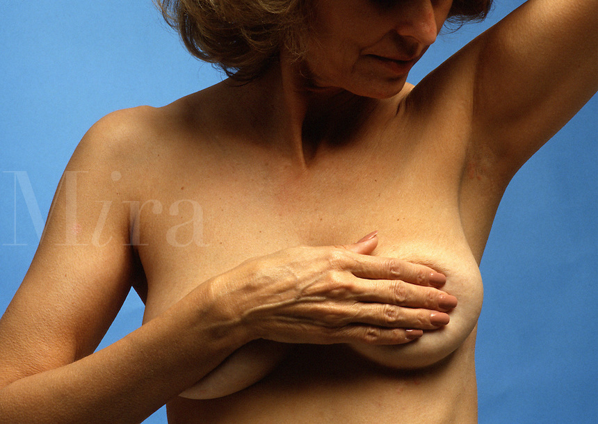 A woman over age 40 performs a breast self-exam.