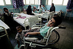 Mine victims recovers on July 21, 1996 in the main hospital in Kabul, Afghanistan. The International Red Cross runs it. The Taliban took over most of the country in 1996 and imposed strict sharpie law, refusing women to work and girls to attend schools. Taliban was ousted in the fall of 2001, after the events at World Trade Center in New York on September 11, 2001. (Photo by: Per-Anders Pettersson)
