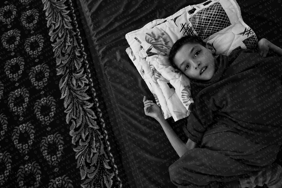 Documenting the echos of Chernobyl Tragedy,Abandoned orphans at Orphanage of Shurawitsche in Rogatschew, a small village in Belarus on the Ukraine border near Chernobyl. Twentyfive years after the Chernobyl explosion, the world's worst nuclear tragedy, children in the independent republic of Belarus continue to be born with deformities, brain damage and genetic mutations. Abandoned by their parents, these children are placed in foster homes scattered around the country, which suffered 70% of the radioactive fallout.