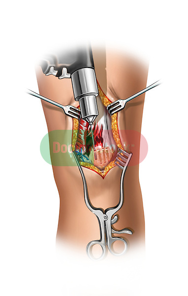Drilling the patella; depicts an incision exposing the patella and the torn quadriceps muscle A drill is shown drilling holes through the  patella