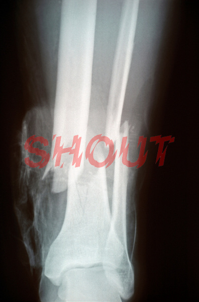 An x-ray of a lower leg fracture ( tibia and fibula ) the classic boot top fracture.  This image may only be used to portray the subject in a positive manner..©shoutpictures.com..john@shoutpictures.com