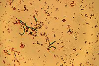 BACTERIA: Cocci; Bacilli; Spirilli 1000X