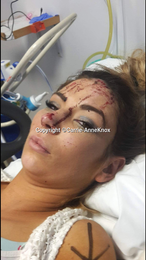 BNPS.co.uk (01202 558833)<br /> Pic:  Carrie-AnneKnox/BNPS<br /> <br /> Carrie-Anne finished her date in A&E with a concussion and a badly broken arm.<br /> <br /> A woman today told of a first date from hell that ended with her being seriously injured, suffering post-traumatic stress, losing her job and her admirer going to jail.<br /> <br /> Carrie-Anne Knox, from Bournemouth, was left lying unconscious and suffering a badly broken arm by Bradley Van Outen who ran away after crashing his car on their date.<br /> <br /> She is still recovering from her injuries eight months later and has lost her job as a hairdresser as a result. Van Outen has been jailed for driving offences.