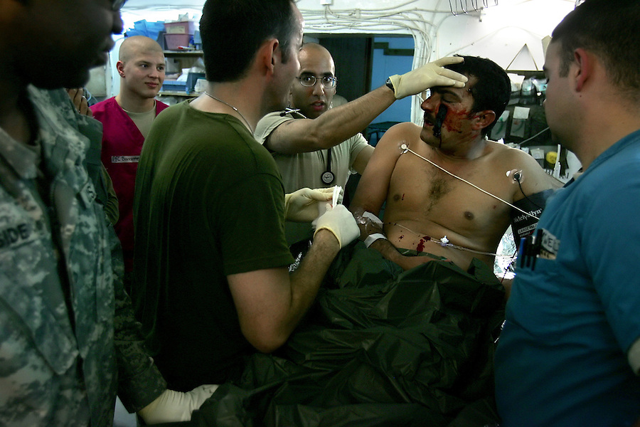 Surgeons and medics at Charlie Med treat a Iraqi private security contractor who has  shrapnel and fabric lodged deep below one of his eyes following the explosion of an IED in Ramadi, Iraq on Monday Oct. 02, 2006.