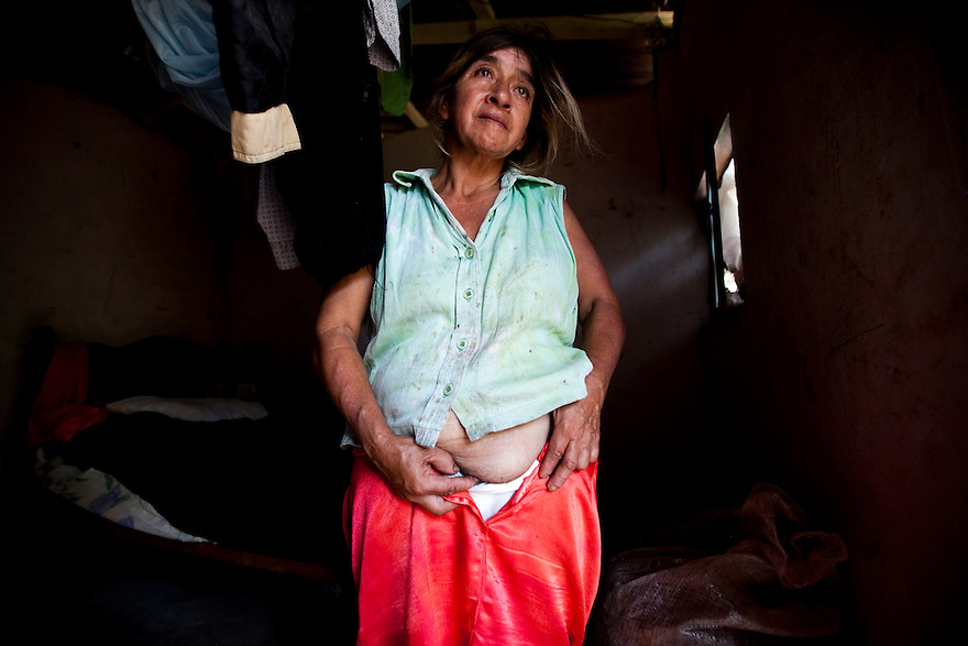 Marta Isabel Arrobo, 49, suffers from a bulging hernia she attributes to living in close proximity to the Sur-Oeste Station.