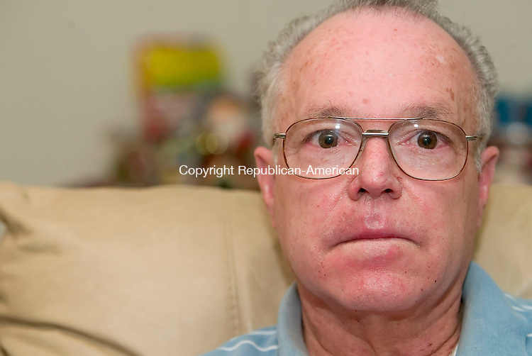 WATERBURY, CT- 30 DECEMBER 2006-123006JS02-Jose Adorno, Sr., of Waterbury was burned in the face during a procedure while on the operating room table at Waterbury Hospital in November. <br /> Jim Shannon/Republican-American