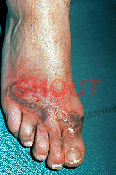 Burns caused to foot by electricity generated by lightning. This image may only be used to portray the subject in a positive manner..©shoutpictures.com..john@shoutpictures.com