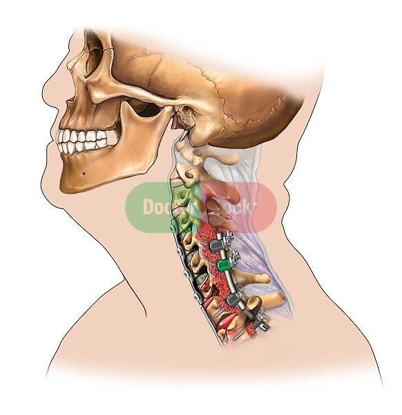 C4-T1 cervical bone fusion, side view
