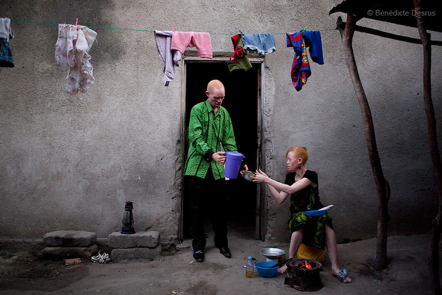 June 26, 2010 - Dar Es Salaam, Tanzania - Janette Anatoli, a 27 year old Tanzanian albino and her husband Augostino Msisi, a 49 year old Tanzanian albino prepare dinner in the backyard of their house in Dar Es Salaam. Albinism is a recessive gene but when two carriers of the gene have a child it has a one in four chance of getting albinism. Tanzania is believed to have Africa' s largest population of albinos, a genetic condition caused by a lack of melanin in the skin, eyes and hair and has an incidence seven times higher than elsewhere in the world. Over the last three years people with albinism have been threatened by an alarming increase in the criminal trade of Albino body parts. At least 53 albinos have been killed since 2007, some as young as six months old. Many more have been attacked with machetes and their limbs stolen while they are still alive. Witch doctors tell their clients that the body parts will bring them luck in love, life and business. The belief that albino body parts have magical powers has driven thousands of Africa's albinos into hiding, fearful of losing their lives and limbs to unscrupulous dealers who can make up to US$75,000 selling a complete dismembered set. The killings have now spread to neighboring countries, like Kenya, Uganda and Burundi and an international market for albino body parts has been rumored to reach as far as West Africa. Photo credit: Benedicte Desrus
