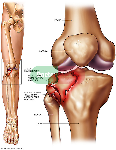 Tibial Plateau Fracture. Accurate depiction of knee joint injury involving the fractured articular surface of the tibia following a severe trauma.