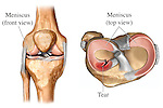 This medical exhibit depicts the anatomy of the right knee joint revealing a torn meniscus injury. It features an anterior (front) orientation view of the right knee indicating the location of the lateral meniscus with a superior tibial plateau (top) view clearly revealing a radial tear to the anterior horn of the lateral meniscus. Labels include the meniscus (front view), menisci (top view) and tear.