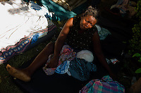 Port Au Prince, Haiti, Jan 17 2010.Jacqueline, 44, was amputated two days ago, without any pain killer ,on the grass in front of the Central Hospital. She is alone as her family can't come visit her..
