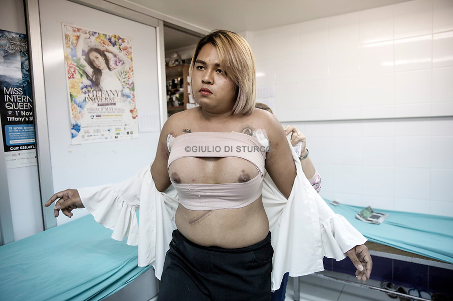 """AFter 2 weeks form the breast operation Chatinrat Boonnachoti,28, from Nakhon Nayok province, came back to Pratunam Ploy Clinic for a control visit. At 63 years of age Dr. Thep is a master of his craft working round the clock as the only surgeon in his clinic, with a daily efficiency and output equal to that of a factory. In a land where perfection is the norm and flawless ideals rein supreme Dr. Thep is synonymous with hand crafting bodies of beauty """"greater to that of a natural woman""""."""