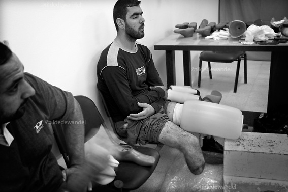 2010 November 1 - Gaza City - Gaza<br /> Man who lost part of his leg during 'Cast Lead', the Israeli attack on Gaza during the winter of 2008-2009, waiting for a new prothesis.