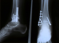 X-RAY OF A BROKEN ANKLE<br />