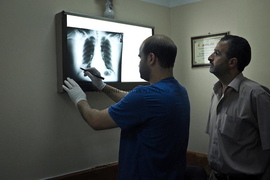 GAZA:a doctor checks the piece of shrapnel remaining in the body of a patient.<br /> <br /> GAZA: un docteur v&eacute;rifie les morceaux de shrapnel rest&eacute;s dans le corps d'un patient.