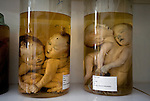 "A ""reference room"" filled with jars of deformed, stillborn fetuses, which are kept for research to find out why the babies were born with abnormalities. The room is viewable for people visiting the hospital."