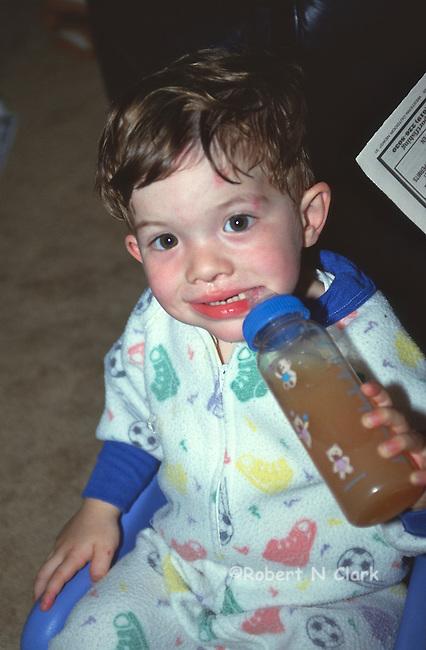 Boy in pajamas wiht bottle