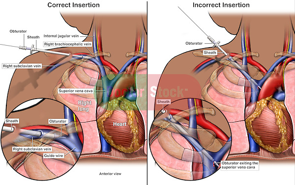This medical illustration series compares correct v. incorrect placement of a subclavian catheter (catheterization) in a black female. Anterior overviews and a detailed inset show the following: 1. Correct procedure where the catheter is properly placed into the right subclavian vein and threaded into the superior vena cava, 2. Incorrect procedure showing the catheter penetrating the wall of the vein.