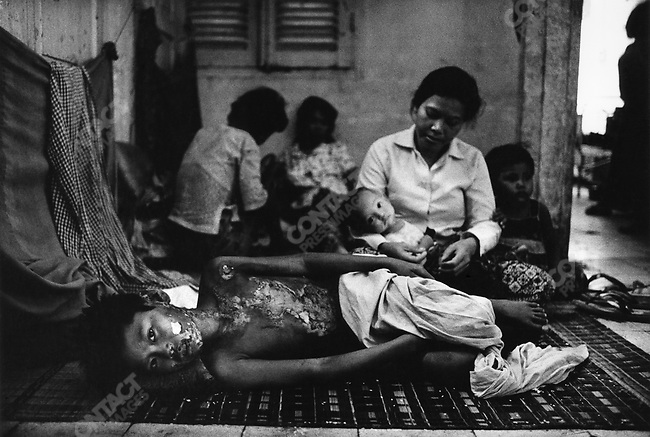 War wounded in hospital, Phnom Phen, Cambodia, 1975.