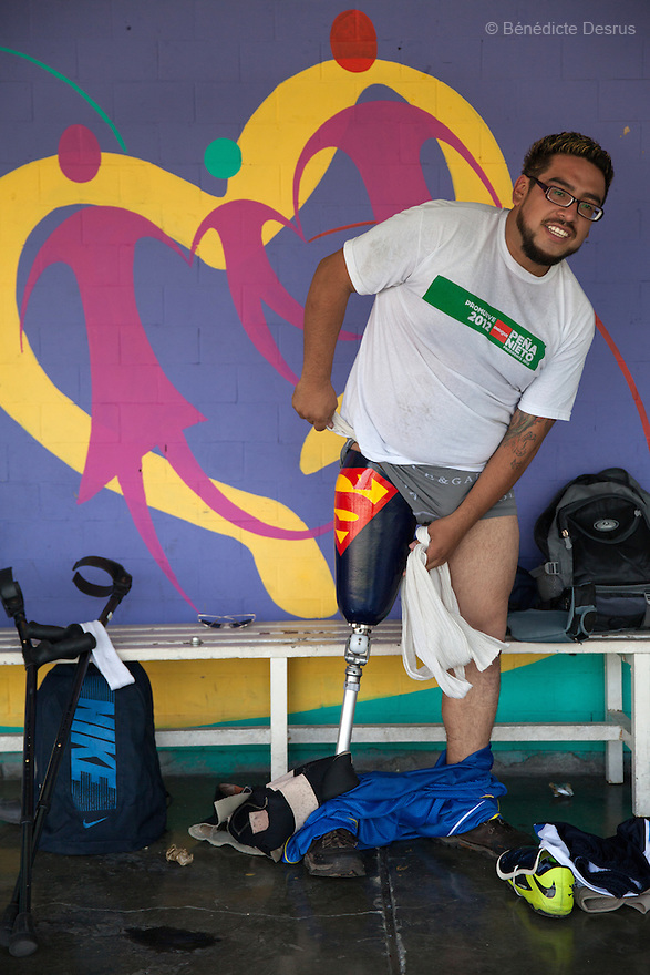 "Jose Luis Almaraz Mendoza, a player from Guerreros Aztecas, removes his ""Superman"" prosthesis and gets changed before training in Mexico City, Mexico on August 23, 2014. Jose Luis, 32, was washing the windows of his home when he fell 3 metres and lost his right leg. Guerreros Aztecas (""Aztec Warriors"") is Mexico City's first amputee football team. Founded in July 2013 by five volunteers, they now have 23 players, seven of them have made the national team's shortlist to represent Mexico at this year's Amputee Soccer World Cup in Sinaloa this December. The team trains twice a week for weekend games with other teams. No prostheses are used, so field players missing a lower extremity can only play using crutches. Those missing an upper extremity play as goalkeepers. The teams play six per side with unlimited substitutions. Each half lasts 25 minutes. The causes of the amputations range from accidents to medical interventions – none of which have stopped the Guerreros Aztecas from continuing to play. The players' age, backgrounds and professions cover the full sweep of Mexican society, and they are united by the will to keep their heads held high in a country where discrimination against the disabled remains widespread. (Photo by Bénédicte Desrus)"