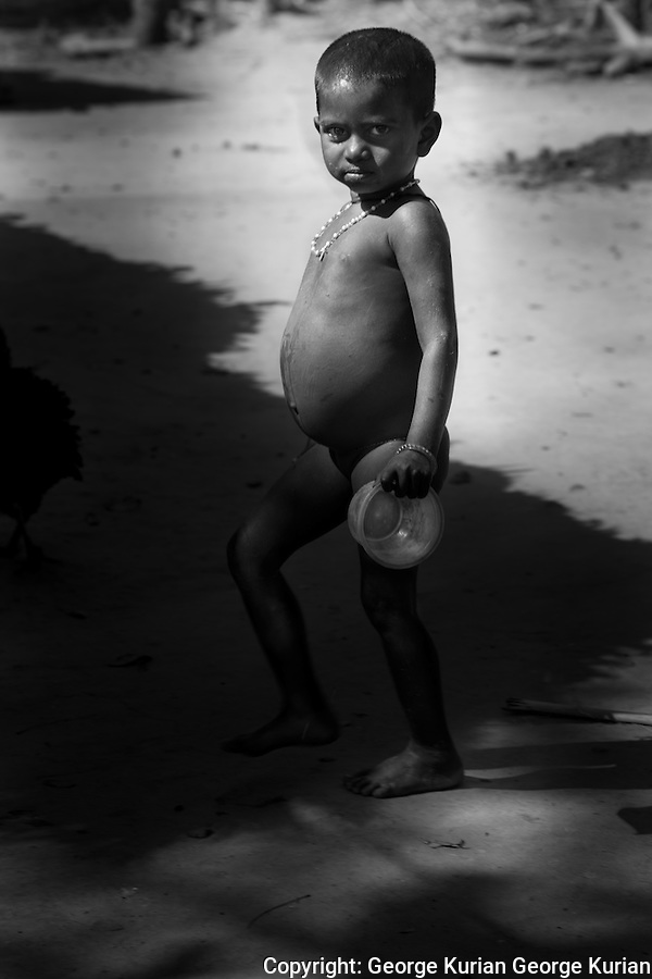 All the children in the village display symptoms of chronic malnutrition and distended bellies.