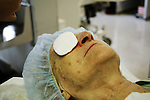 Patient recovering after eye surgery with a pad on her eye