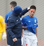 Ian Black leaves the park with a split head after a high boot at Clyde