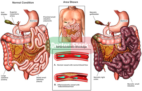 Small Intestine (Bowel) Necrosis - Mesenteric Ischemia. Blocked artery (atherosclerosis) leads to death of small intestines.