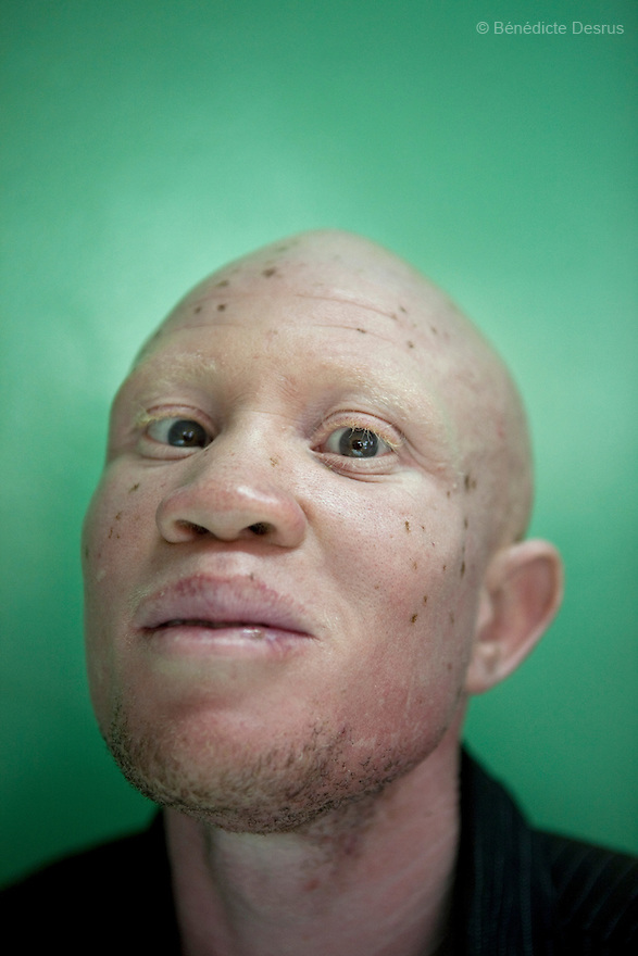 For The Uganda Albinos Association<br />