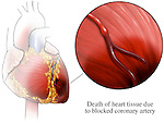 This medical exhibit depicts myocardial ischemia (heart muscle death) following an acute (rapid) myocardial infarction (heart attack). It features an anterior (front) orientation view of the heart with a detail enlargement of the distal left anterior descending artery (LAD) with blockage. Dead, discolored, ischemic and damaged heart muscle tissue is seen below the point of the coronary arterial blockage. A single label identifies the death of heart tissue due to blocked artery.