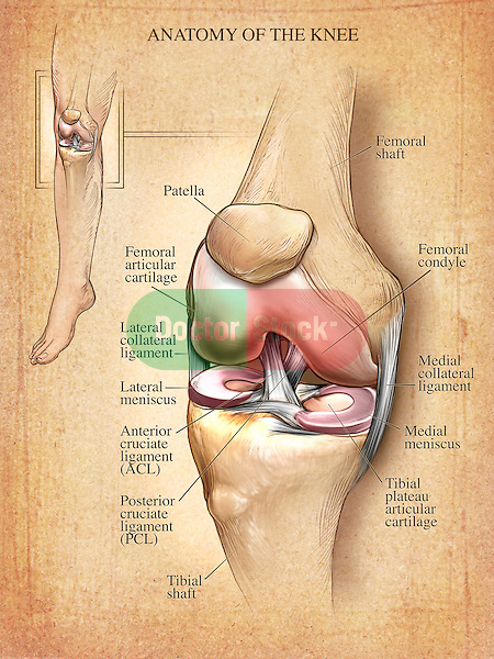 This medical illustration features an editorial image of the anatomy of the right knee bones, menisci and ligaments on a parchment textured background.