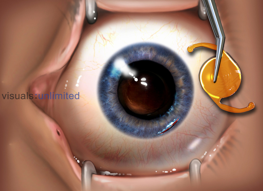 Biomedical illustration of an intraocular lens (IOL) for implantation in the eye to treat cataracts or myopia.