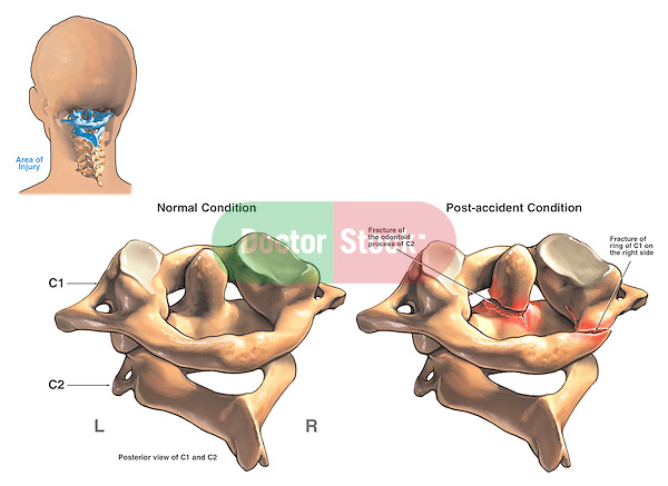 This medical exhibit depicts a C1-2 (atlas and axis) spine fractures using a series of three illustrations. The first graphic displays a posterior (back) view of the head showing the location of the injury in the neck. The next two graphics show a normal C1 and C2 vertebrae vs the same structures with fractures.  Labels include a fractured odontoid process, or dens, and a fracture of C1 on the right side.