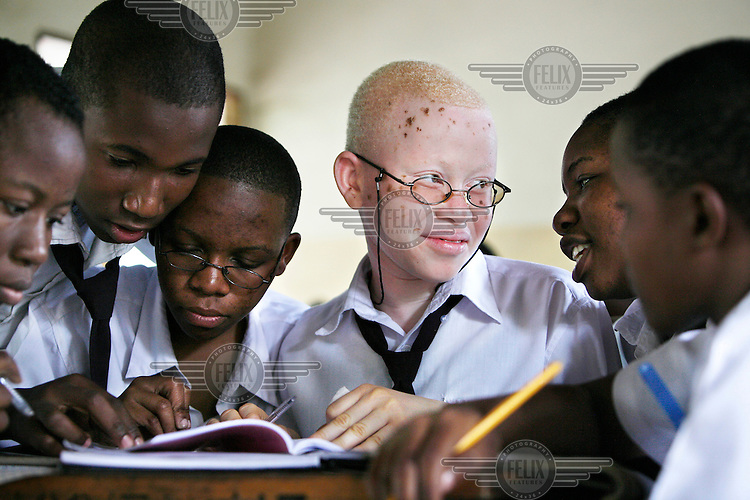"15 year old Joyce studying in class with her school friends. Her mother is a nurse, so knew how to take care of her and her brother, ""I knew how to take care of the skin. Especially when they are young, albinos should be very well cared for. I always kept them inside and lotioned their skin on a daily basis."" Even with the protection of a knowledgeable and loving mother, Joyce was recently terrified while waiting for the school bus. She overheard two men saying how they should kidnap her in order to sell her hair and skin. Discrimination against albinos is a serious problem throughout sub-Saharan Africa, but recently in Tanzania albinos have been killed and mutilated, victims of a growing criminal trade in albino body parts fuelled by superstition and greed. Limbs, skin, hair, genitals and blood are believed by witch doctors to bring good luck, and are sold to clients for large sums of money, carrying with them the promise of instant wealth."