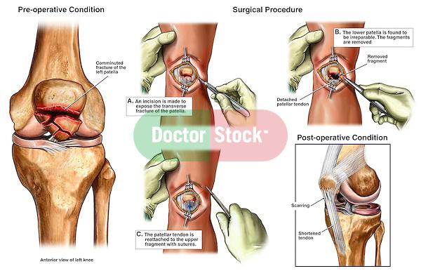 Comminuted Patellar (Kneecap) Fracture Surgery