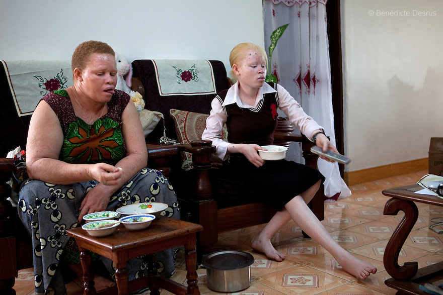 10 june 2010 - Dar Es Salaam, Tanzania - Teresa January and her daughter (17 yrs) during lunch time at the family house. Samuel Herman Mluge (51yrs) an albino rights activist in Dar Es Salaam, Tanzania and his wife Teresa January (46 yrs) have five children, all with albinism. Albinism is a recessive gene but when two carriers of the gene have a child it has a one in four chance of getting albinism. Tanzania is believed to have Africa' s largest population of albinos, a genetic condition caused by a lack of melanin in the skin, eyes and hair and has an incidence seven times higher than elsewhere in the world. Over the last three years people with albinism have been threatened by an alarming increase in the criminal trade of Albino body parts. At least 53 albinos have been killed since 2007, some as young as six months old. Many more have been attacked with machetes and their limbs stolen while they are still alive. Witch doctors tell their clients that the body parts will bring them luck in love, life and business. The belief that albino body parts have magical powers has driven thousands of Africa's albinos into hiding, fearful of losing their lives and limbs to unscrupulous dealers who can make up to US$75,000 selling a complete dismembered set. The killings have now spread to neighbouring countries, like Kenya, Uganda and Burundi and an international market for albino body parts has been rumoured to reach as far as West Africa. Photo credit: Benedicte Desrus
