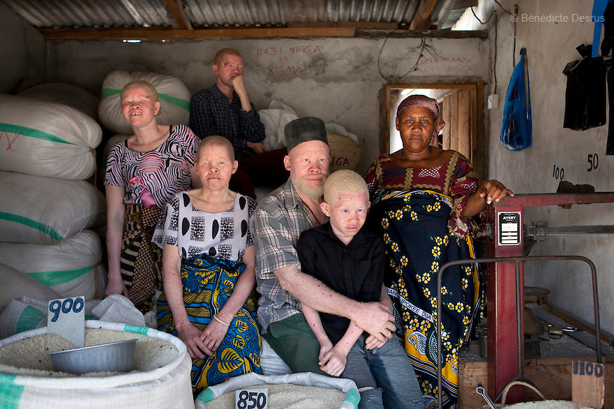 June 28, 2010 - Dar es Salaam, Tanzania - Ali Mohamed (C) is a 61 year old Muslim man with albinism living in Tanzania where he has a shop selling rice and grains. Ali married his first wife, Jutia Jalehe, in 1978. Jutia is also an albino and together they had 1 son with albinism named Salehe Ally. In 1983, Mohamed married his second wife, Nuru Mohamedy who did not have Albinism. Together they had 6 children, two of them with albinism and four of them without albinism. Albinism is a recessive gene but when two carriers of the gene have a child it has a one in four chance of getting albinism. Tanzania is believed to have Africa' s largest population of albinos, a genetic condition caused by a lack of melanin in the skin, eyes and hair and has an incidence seven times higher than elsewhere in the world. Over the last three years people with albinism have been threatened by an alarming increase in the criminal trade of Albino body parts. At least 53 albinos have been killed since 2007, some as young as six months old. Many more have been attacked with machetes and their limbs stolen while they are still alive. Witch doctors tell their clients that the body parts will bring them luck in love, life and business. The belief that albino body parts have magical powers has driven thousands of Africa's albinos into hiding, fearful of losing their lives and limbs to unscrupulous dealers who can make up to US$75,000 selling a complete dismembered set. The killings have now spread to neighboring countries, like Kenya, Uganda and Burundi and an international market for albino body parts has been rumored to reach as far as West Africa. Photo credit: Benedicte Desrus