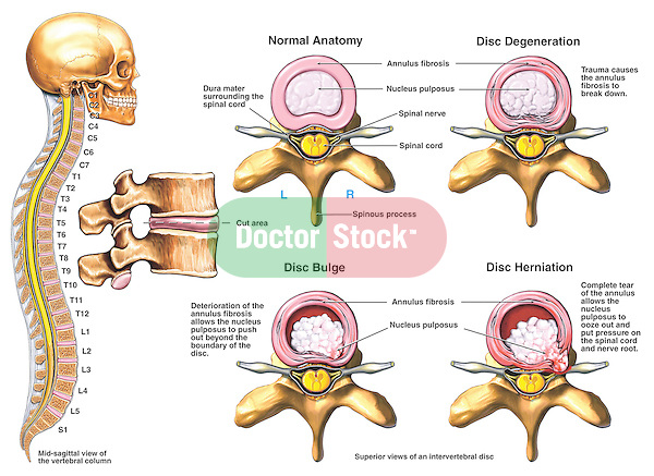 Lumbar Spine Injury - Classic Intervertebral Disc Injuries and Degenerative Disc Disease. Accurate medical-legal chart depicting a variety of intervertebral disc injuries. Insets: 1. Normal Anatomy from a superior view; 2. Disc degeneration causing the annulus fibrosis to break down; 3. Disc bulge with nucleus pulposus pushing the disc posteriorly; and 4. Disc herniation with complete tearing of the annulus allowing the nucleus pulposus to ooze out and put pressure on the spinal cord and nerve root.
