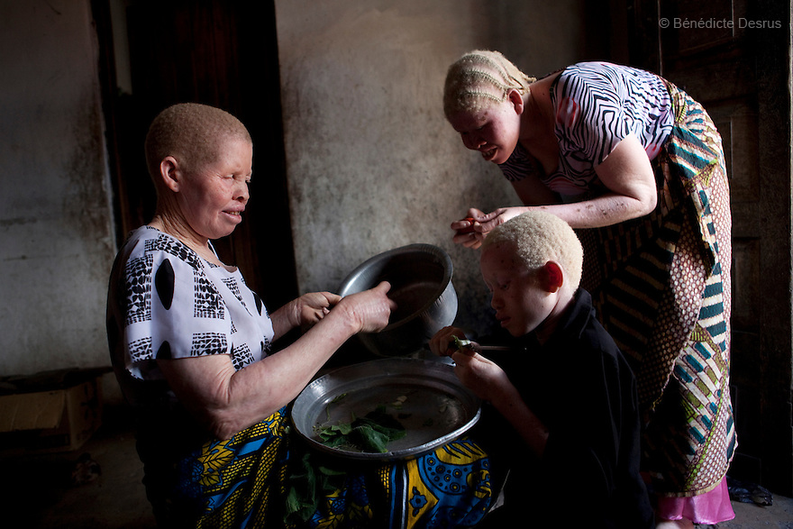 June 28, 2010 - Dar es Salaam, Tanzania - Jutia Jalehe (L) and Nuru Mohamedy's children prepare dinner at home. Ali Mohamed is a 61 year old Muslim man with albinism living in Tanzania where he has a shop selling rice and grains. Ali married his first wife, Jutia Jalehe, in 1978. Jutia is also an albino and together they had 1 son with albinism named Salehe Ally. In 1983, Mohamed married his second wife, Nuru Mohamedy who did not have Albinism. Together they had 6 children, two of them with albinism and four of them without albinism. Albinism is a recessive gene but when two carriers of the gene have a child it has a one in four chance of getting albinism. Tanzania is believed to have Africa' s largest population of albinos, a genetic condition caused by a lack of melanin in the skin, eyes and hair and has an incidence seven times higher than elsewhere in the world. Over the last three years people with albinism have been threatened by an alarming increase in the criminal trade of Albino body parts. At least 53 albinos have been killed since 2007, some as young as six months old. Many more have been attacked with machetes and their limbs stolen while they are still alive. Witch doctors tell their clients that the body parts will bring them luck in love, life and business. The belief that albino body parts have magical powers has driven thousands of Africa's albinos into hiding, fearful of losing their lives and limbs to unscrupulous dealers who can make up to US$75,000 selling a complete dismembered set. The killings have now spread to neighboring countries, like Kenya, Uganda and Burundi and an international market for albino body parts has been rumored to reach as far as West Africa. Photo credit: Benedicte Desrus