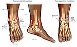 Ankle Surgery - Trimalleolar Fractures of the Left Ankle with Fixation.