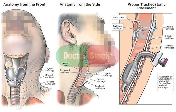 Anatomy of the Trachea with Proper Tracheostomy Placement. This medical exhibit depicts the anatomy of the trachea with the proper placement of a tracheostomy tube between the second and third tracheal cartilages from multiple views. Labeled structures include the thyroid cartilage, cricoid cartilage, tracheal cartilages, arytenoid cartilages, vocal cords and tracheostomy tube air passage.