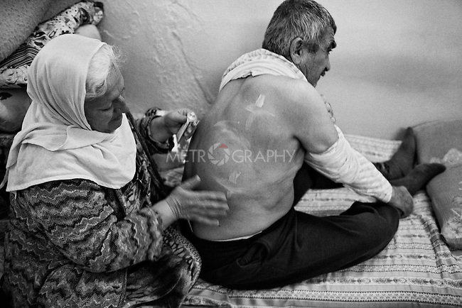 25..3.2015 Kirkuk,Iraq. Najiba draws crosses with ointment on the back of her husband, who suffers from back aches.