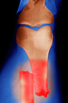 X-ray of a comminuted fracture, showing the femur, tibia, and fibula bones. These fractures occur when bones are broken, splintered, or crushed into a number of pieces. Comminuted fractures are closed fractures, unlike a compound fracture which is an open fracture.