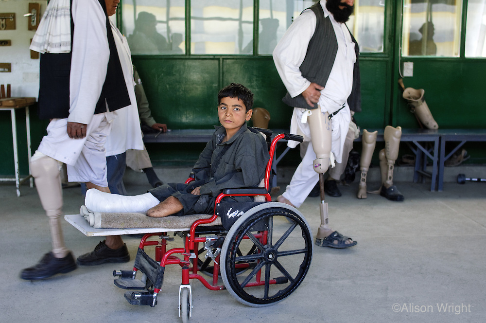 Child with landmine injury at Red Cross Rehabilitation Center, Kabul, Afghanistan 2007