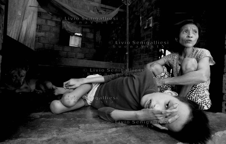 Cam Nghia / Provincia di Quang Tri / Vietnam.<br /> Lo chiamano 'il villaggio maledetto' a causa dell'alta concentrazione di diossina che ha prodotto gravissime conseguenze sulla natura e la popolazione.In nove famiglie visitate ci sono undici vittime con malformazioni fisiche e ritardo mentale. Altissima &egrave; la percentuale di bambini nati morti.In primo piano Nguyen Van Truong, 16 anni. Al suo fianco la madre Le Thi Mit pi&ugrave; volte irrorata con l'agent orange ai tempi della guerra tra Vietnam e Stati Uniti.Ricorda:'Quando passavano gli aerei che nebulizzavano l'agent orange ci bruciava la gola e lacrimavano gli occhi. Nei giorni seguenti cadevano le foglie degli alberi. Nessuno ci ha mai avvisato della pericolosit&agrave; della sostanza. Tuttora viviamo dei frutti della terra e beviamo l'acqua dei pozzi'.<br /> Foto Livio Senigalliesi.<br /> Cam Nghia / Quang Tri / Vietnam.<br /> Consequenses of chemical warfare in Vietnam 40 years later.Mrs.Le Thi Mit and her son Van Truong (16) are living in a village deep in the jungle spayed many times by US airplanes. Most of the children born after the conflict are physically handicapped or mentally dysfuncional. The dioxin is still in the water and in the ground.<br /> Photo Livio Senigalliesi