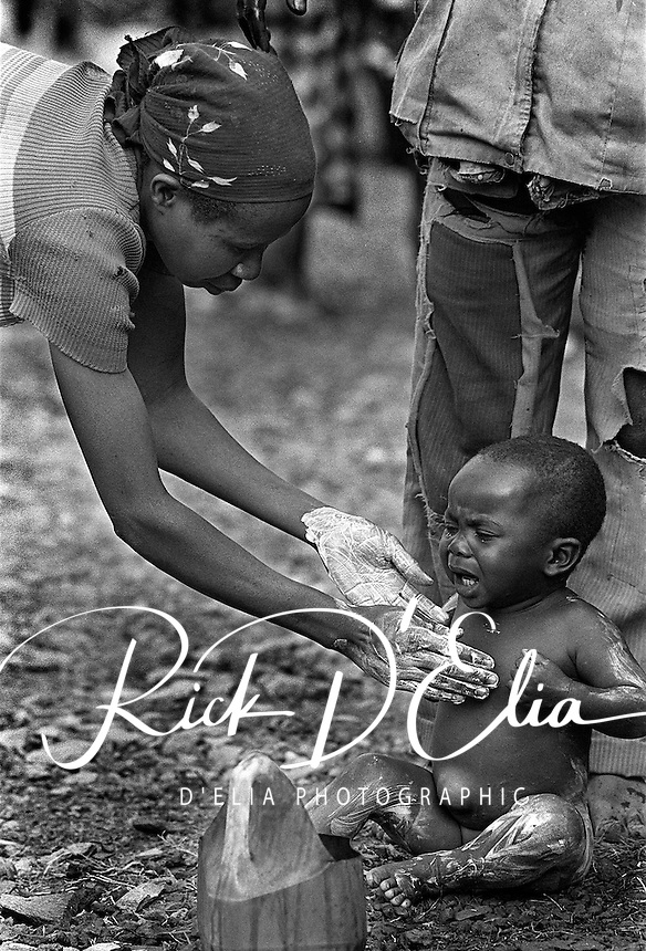 A child receives an anti-scabies bath from his mother at the AmeriCares Buranga, Rwanda clinic in Oct., 1994. Scabies is a mite which burrows into the skin of infrequent bathers.  The New Canaan, Connecticut humanitarian organization set up clinic about half way between Goma Zaire (now Congo) and Rwanda's capitol Kigali to help people returning from the refugee camps in Goma. While they saw a trickle of refugees, the clinic actually treated more people living in the countryside suffering from illnesses which resulted from the destruction of the infrastructure of the country in civil war. (photo Rick D'Elia)